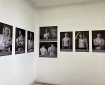 Izložbom fotografija Udruženje pacijenta ukazalo na značaj brige o sopstvenoj koži